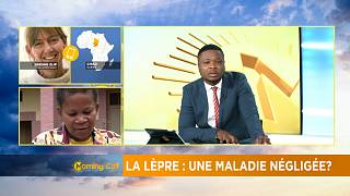 Leprosy re-emerges as global health challenge [The Morning Call]