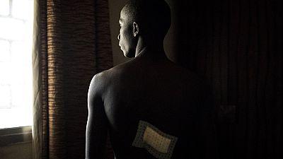 En Guinée, l'opposition soigne ses blessés dans sa propre clinique
