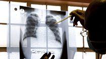 Santé – Découverte : l'OMS face aux inventions africaines