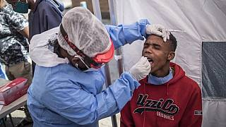 Coronavirus en Afrique : 135 599 cas confirmés - 56 540 guérisons - 3 926 décès