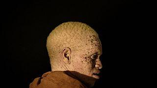 Burundi : le calvaire des albinos en saison sèche