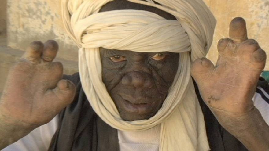 Leprosy - the forgotten disease