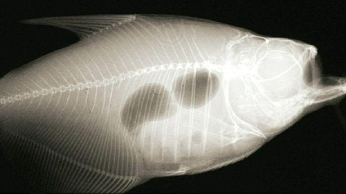 Портативный рентгеновский аппарат