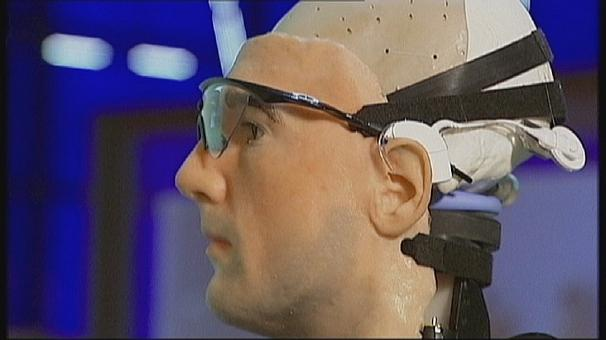 Meet Rex – the world's first real bionic man