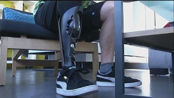 Printed prosthetics