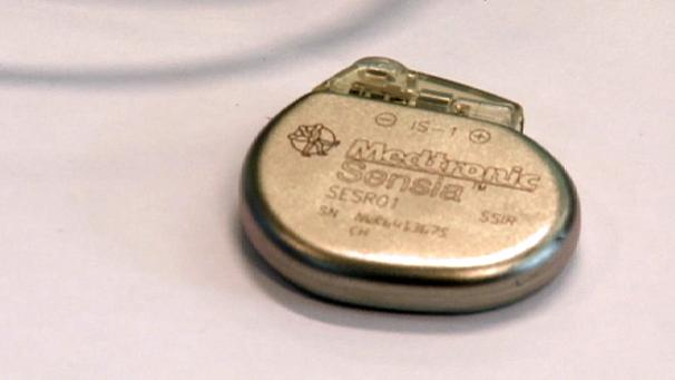 Shrinking the pacemaker