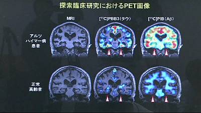 Japanese breakthrough in the Alzheimer's mystery