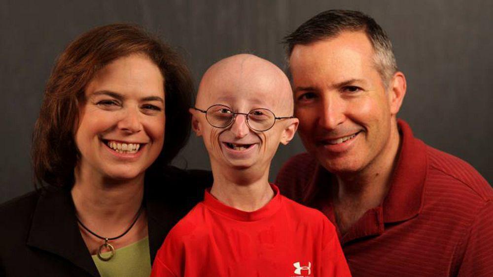 Sam Berns Atteint De Progeria Est Mort A 17 Ans Euronews