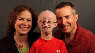 Sam Berns, atteint de progéria, est mort à 17 ans