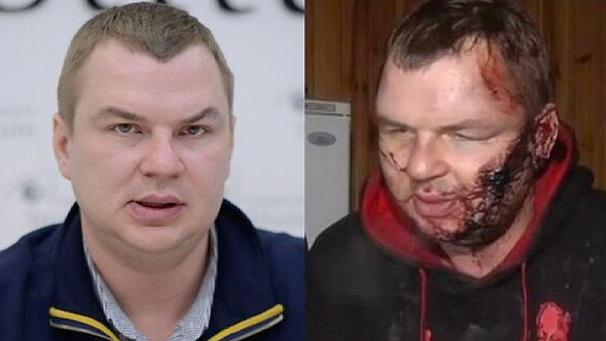 Ukraine government says 'tortured' activist Dmytro Bulatov is both victim and suspect