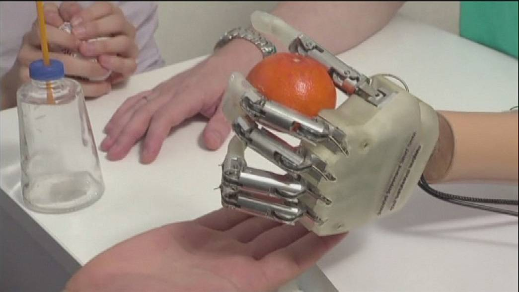 Amputee recovers feeling with robotic arm