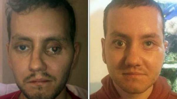 Βρετανία: Νέο πρόσωπο με χρήση εκτυπωτή 3D