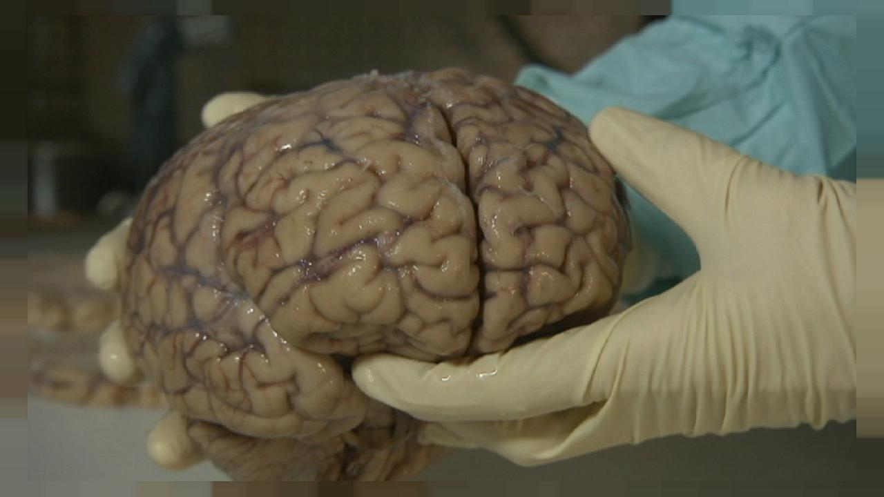 Do you know: do injured brains dream?