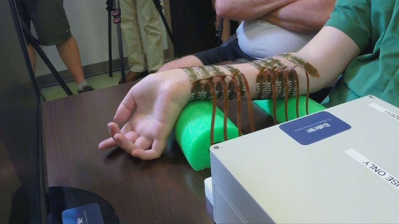 Ohiói tudósok sikere: egy chipnek köszönhetően mozog a lebénult végtag