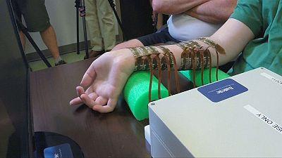 Ein elektrischer Bypass verhilft Querschnittsgelähmten zur Bewegung