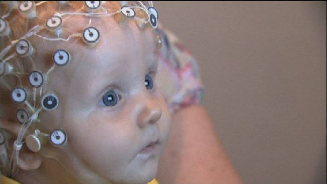 EEG-Test weist autistische Störung bereits bei Babys nach