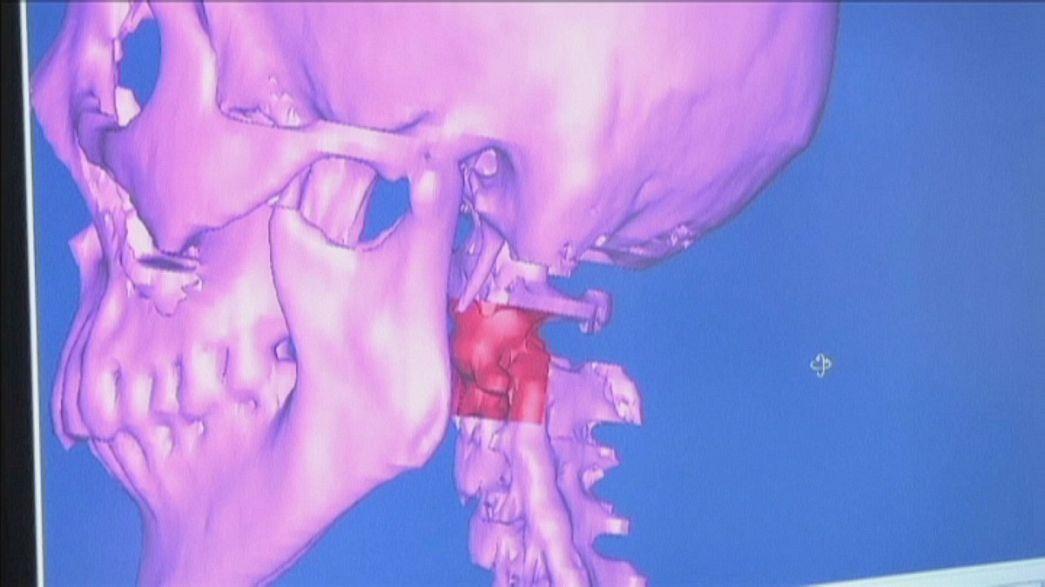 Implante de vértebra feita com impressora 3D