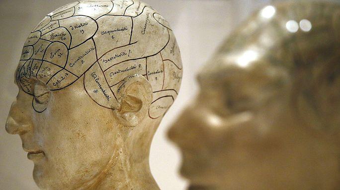 Scientists find brain's weak spot for dementia and schizophrenia