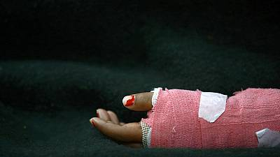 Nepalese schoolgirls injured in acid attack