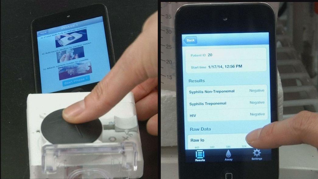 Um aparelho simples ligado ao smartphone para despitar o VIH