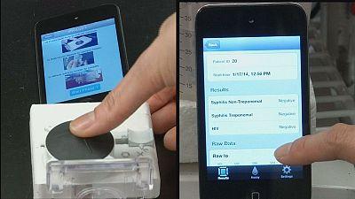 Smartphone-Zubehör testet HIV und Syphilis