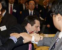 South Korea: Man arrested in knife attack on US ambassador