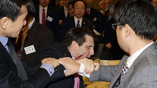 Protest gegen Militärmanöver in Südkorea: Messerstecher verletzt US-Botschafter