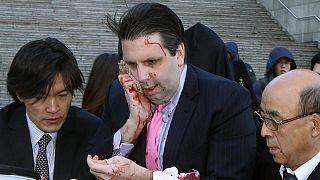 Büyükelçinin yüzüne 80 dikiş atıldı