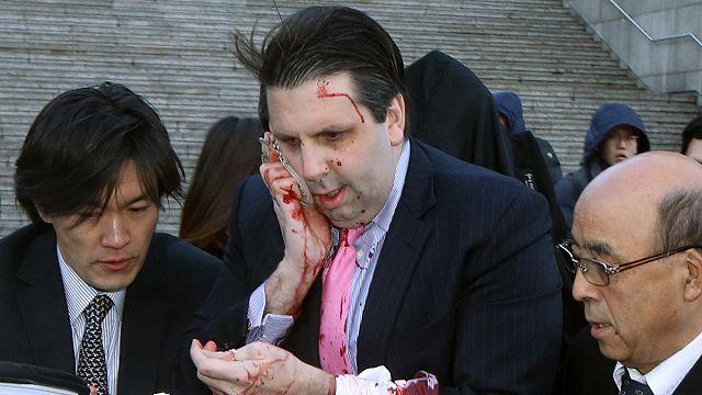 Több mint 80 öltéssel varrták össze a szöuli amerikai nagykövet arcát