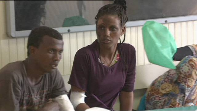 Италия: мигранты со страшными ожогами провели в море несколько дней