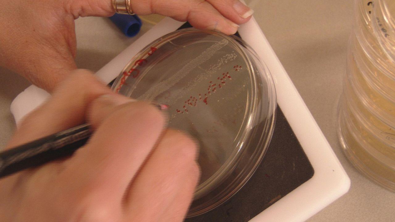 Was tun gegen antibiotika-resistente Super-Bakterien?