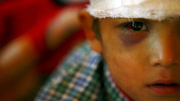 Surto de epidemias ameaça o Napal