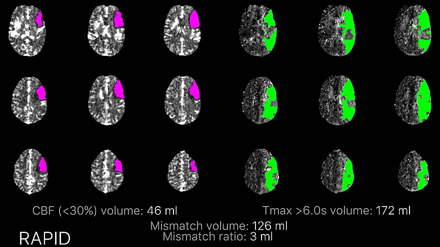 Image: Stroke CT perfusion scan