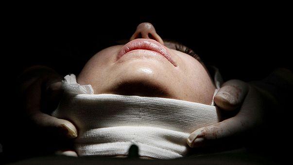 Les Américains face à la chirurgie plastique : les dernières tendances