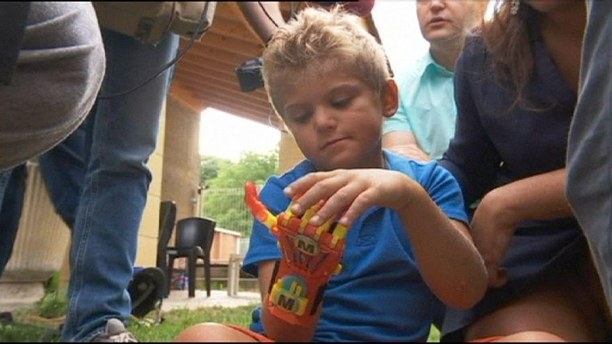 Франция: шестилетний мальчик стал первым обладателем протеза 3D