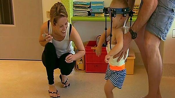 Médicos australianos salvan a un bebé al unir su cabeza con la columna vertebral