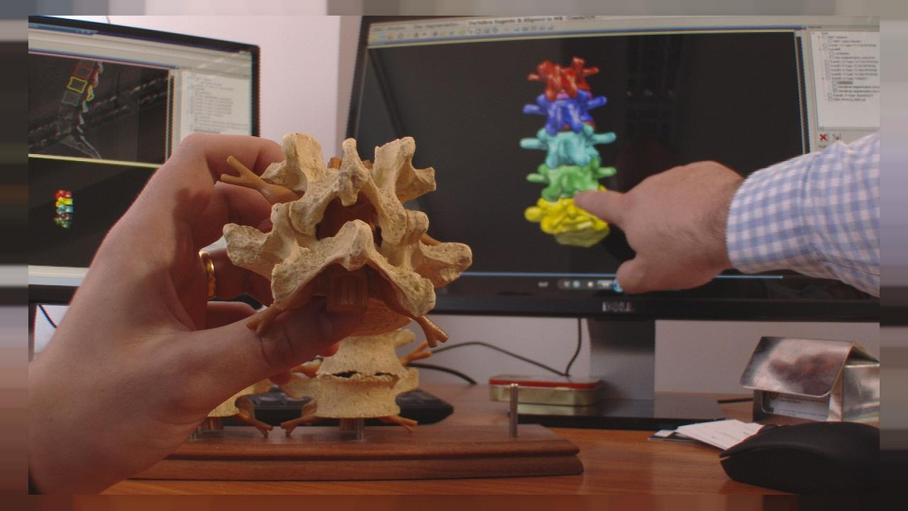 Do you know: can computers heal spines?