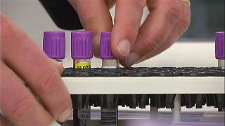 اختبا دم جديد للكشف المبكر عن سرطان البروستات
