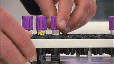 Nuovo test per il tumore alla prostata