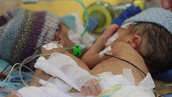 Doctors separate 'smallest-ever' conjoined twins