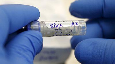 Un premier cas de transmission du virus Zika confirmé aux Etats-Unis