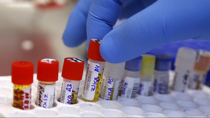 Zika: US reports first sexually-transmitted case