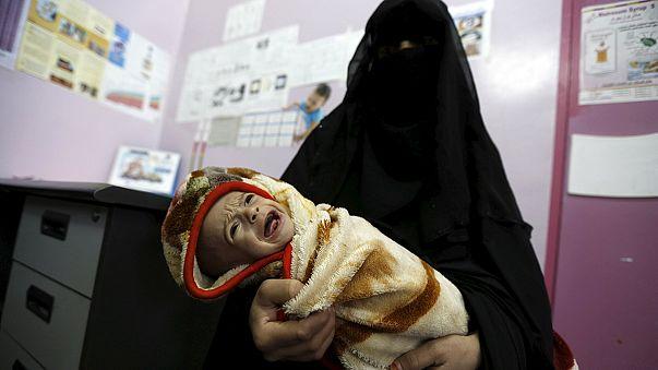 أطفال اليمن يعانون سوء التغذية والمجاعة تهدد معظم السكان