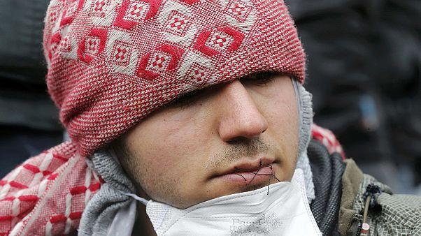 Refugiados de Calais se cosen los labios para protestar por su desalojo