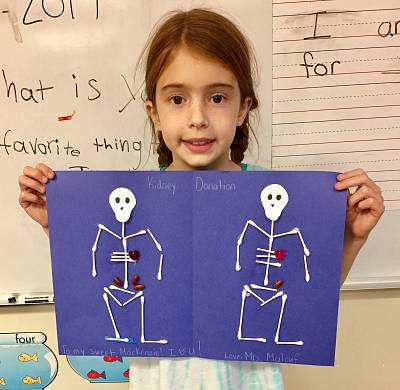 Mackenzie Emmott\'s teacher, Allison Malouf, taught her first grade class about what a living kidney donation means.