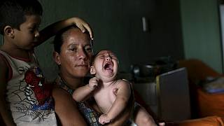 Brazil strengthens healthcare to tackle microcephaly