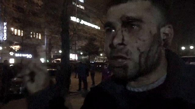 34 قتيلا و125 جريحا في اعتداء أنقرة...أحد الجرحى يصف ما حدث