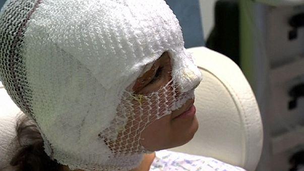"""Fanny, herida en el atentado del aeropuerto de Bruselas: """"No me paso el día llorando porque me iba a deshidratar"""""""