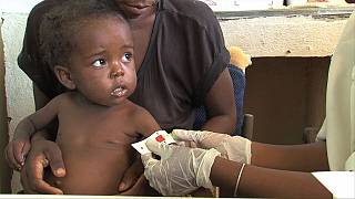 Drought causes severe malnutrition in Madagascar