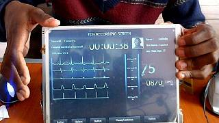 Cameroonian 'medical tech tablet' a boost for heart patients